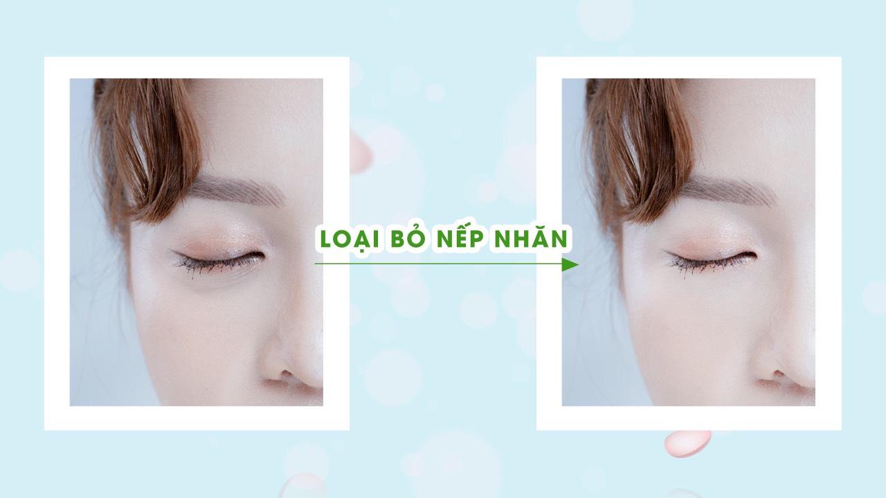 Kem trị thâm mắt Riori Peptide Eye Cream giúp xóa tan mọi vết thâm trêm mắt