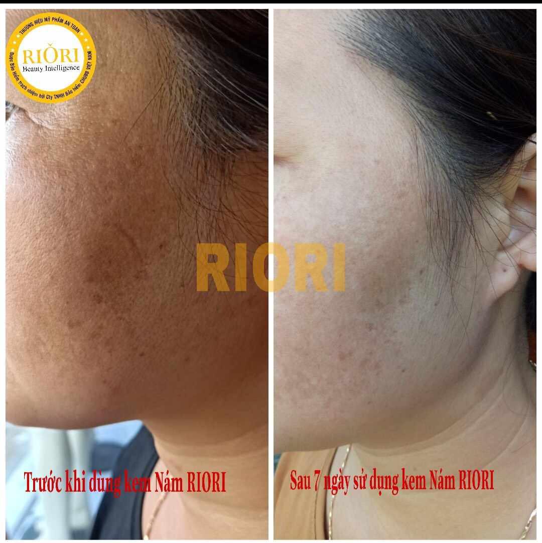Kết quả sau 7 ngày sử dụng kem trị nám Riori Melasma Collagen